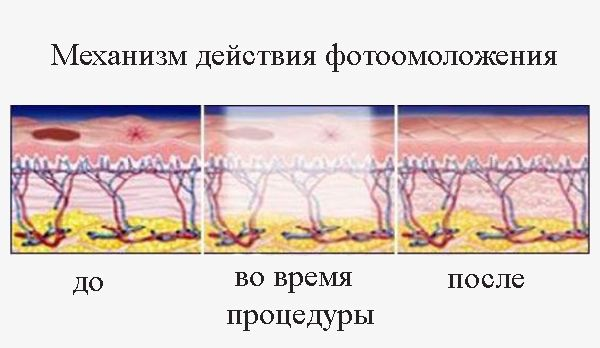 Механизм фотоэпиляции